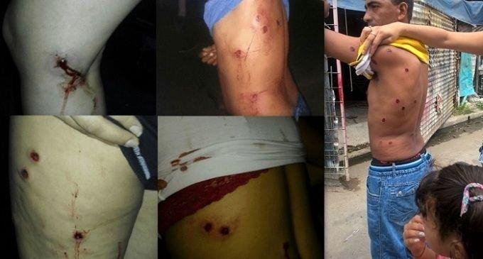 Denuncian a la Gendarmería por el ataque a chicos de una murga