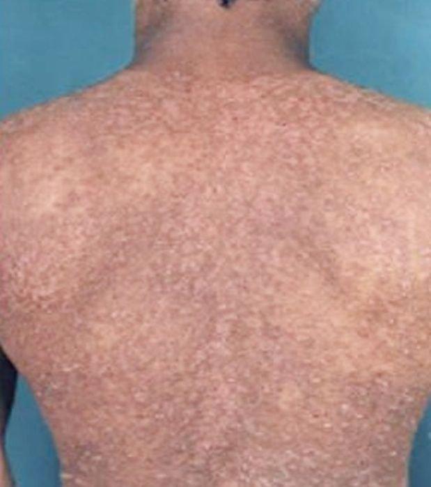 cuando aparecen los sintomas de dengue