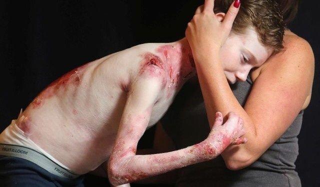 Jonathan en un tierno abrazo con su madre que lo ayuda y lo sostiene.